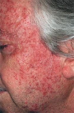 СО2 скарификация-хирургическое-лечение розацеа на лице