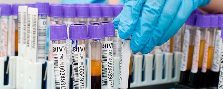биохимический-анализ-крови-расшифровка-2-min