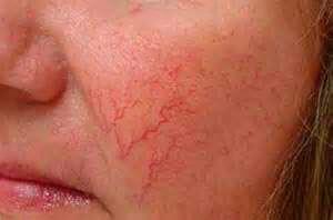 электрокоагуляция скарификация-хирургическое-лечение розацеа на лице