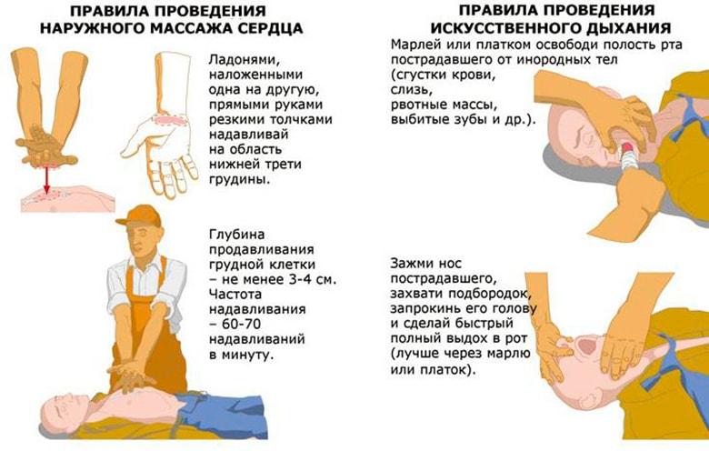 iskusstvennoe-dykhanie-naruzhnyi-mass-Д