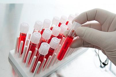 как обозначается гемоглобин в анализе крови