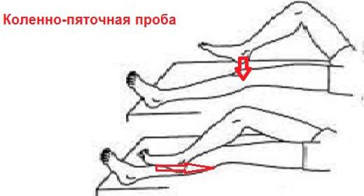 vestibulo-atakticheskii-sindrom-2