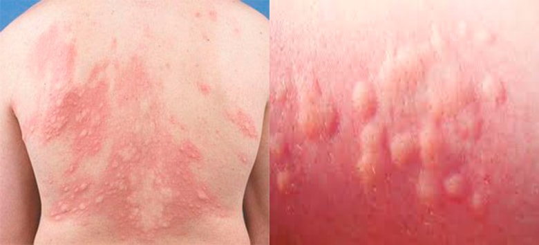 крапивница лекарственная аллергия