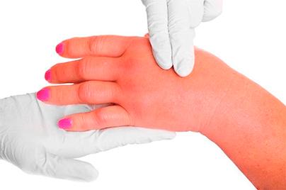 Крапивница у взрослых – симптомы и лечение