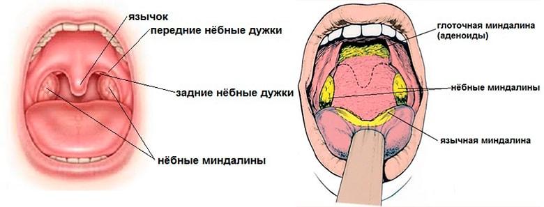 Hronicheskij-tonzillit-img-1