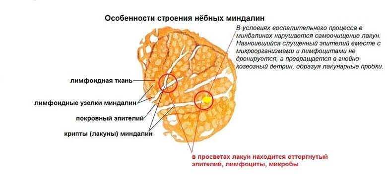 Hronicheskij-tonzillit-img-2