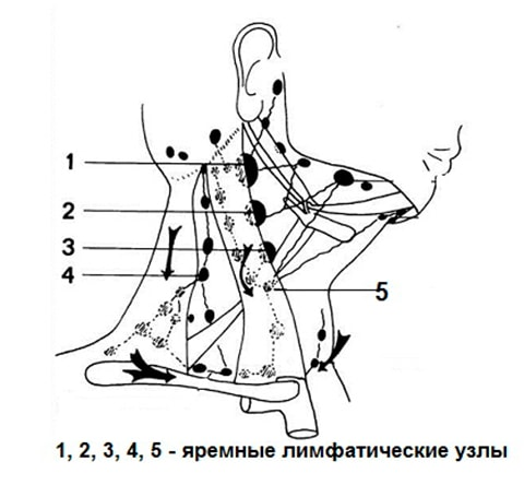 Hronicheskij-tonzillit-img-4