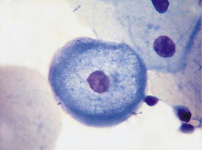 Койлоцит в мазке (ВПЧ, вирус кондиломы остроконечной).