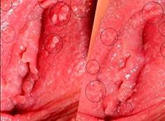 Кондиломы на малых половых губах