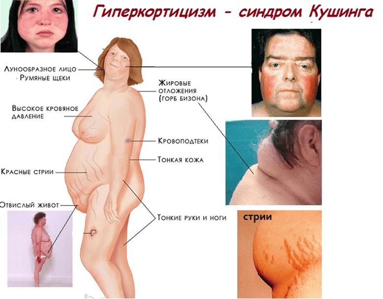 Симптомы гиперкортицизма
