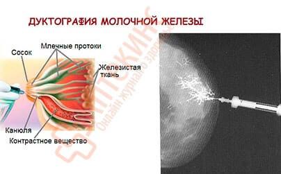 дуктография - введение контраста