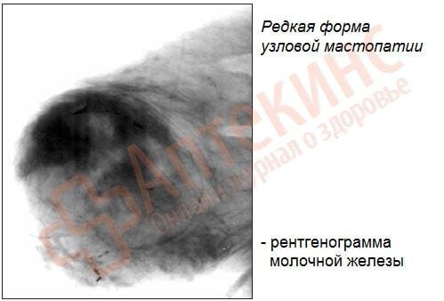редкая форма узловой мастопатии