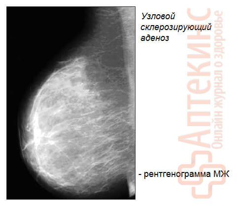 узловой склерозирующий аденоз