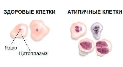 Атипичные клетки – цитология