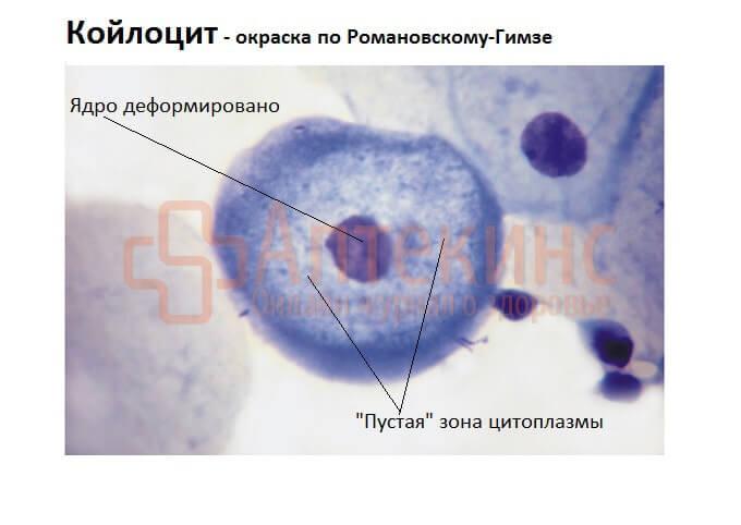 Поражённые ВПЧ клетки в мазке
