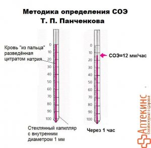 СОЭ по Панченкову – схема