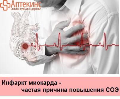 Повышена СОЭ при инфаркте сердца