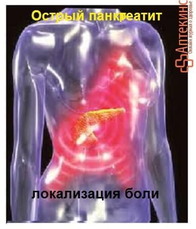 Боль при остром панкреатите - схема