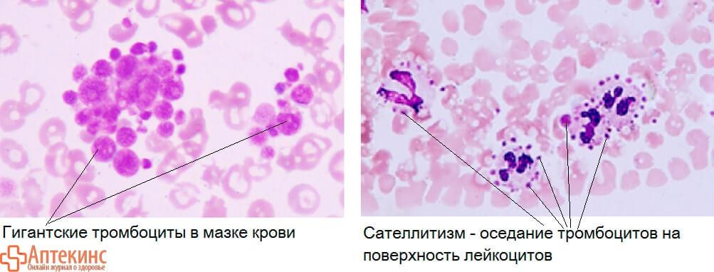 Сатиллитизм тромбоцитов