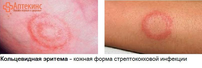 АСЛО при кольцевидной эритеме
