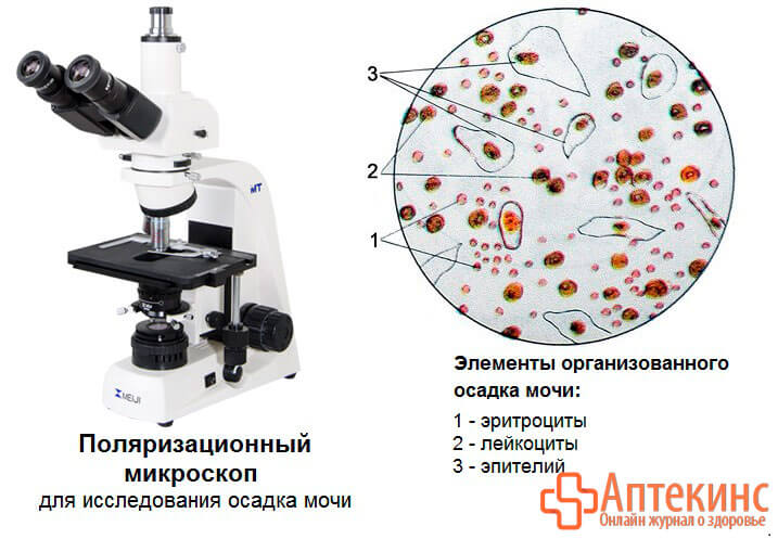 Микроскопия осадка мочи